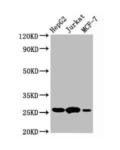 Western Blot<br /> Positive WB detected in:HepG2 whole cell lysate,Jurkat whole cell lysate,MCF-7 whole cell lysate<br /> All lanes:BCL2 antibody at 1
