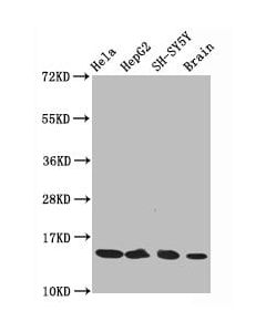 Western Blot<br /> Positive WB detected in:Hela whole cell lysate,HepG2 whole cell lysate,SH-SY5Y whole cell lysate,Rat brain tissue<br /> All lanes:Acetyl-Histone H3.1(K14)antibody at 0.75